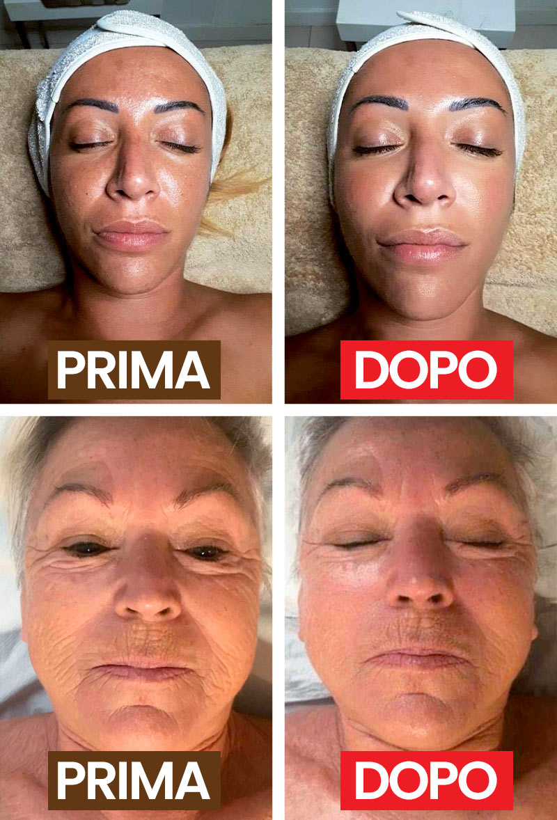 Natural Face Therapy